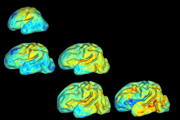 Researchers Use 3D Mapping to Measure Growth and Folding Patterns in Pre-Term Babies' Brains (3dprint.com)